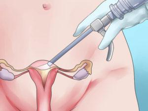 Выделения после лапаротомии миомы