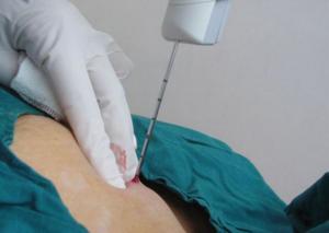 Биопсию как берут молочной железы