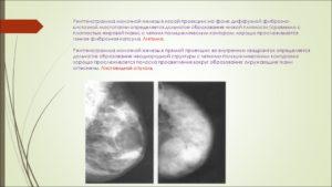 Фиброзно кистозная болезнь молочных желез