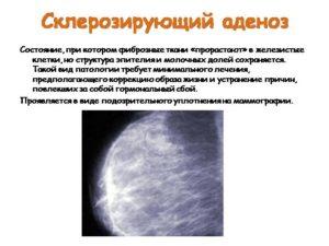 Аденоза молочной железы что это такое