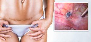 Эндометриоз почему возникает