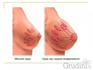 Почему набухают молочные железы и болят