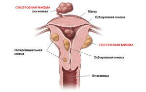 Эхопризнаки миомы матки что это такое