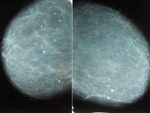 Единичные кальцинаты в молочной железе