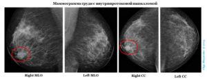 Внутрипротоковое образование молочной железы