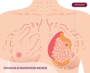 Шишка в молочной железе
