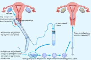 Пункция яичников при эко как происходит