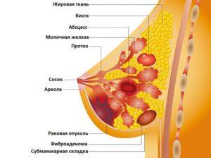 Большое уплотнение в молочной железе
