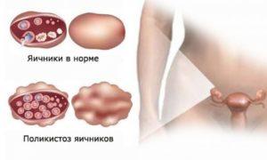 Что такое поликистоз яичников можно ли забеременеть