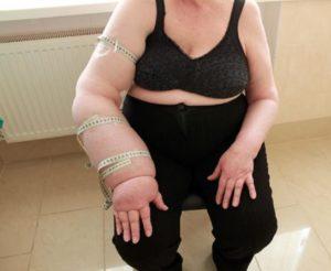 Отек руки после операции на молочной железе