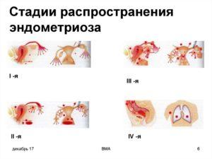 Эндометриоз 1 степени что это такое
