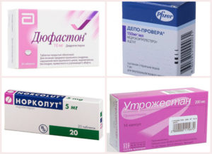 Гормональные препараты при миоме матки и эндометриозе