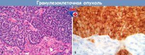 Гранулезоклеточный рак яичников