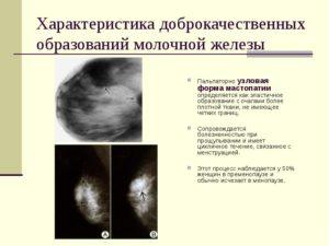 Доброкачественные образования молочной железы