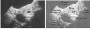 Киста желтого тела при беременности правого яичника