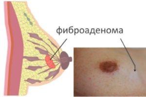 Болит фиброаденома молочной железы почему