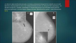 В молочных железах фиброзные изменения