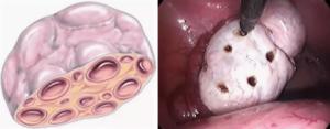 Беременность при поликистозе яичников после лапароскопии