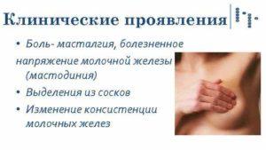 Мастодиния молочной железы