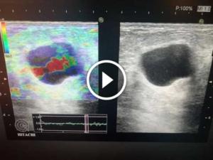 Протоковая киста молочной железы прогноз