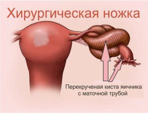 Хирургическая ножка яичника