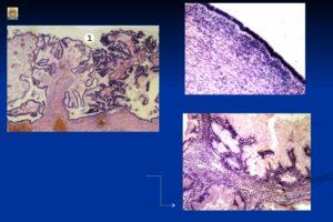 Муцинозная цистаденокарцинома яичника