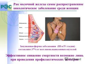История болезни рак молочной железы