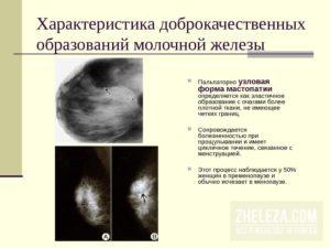 Узловое образование молочной железы что это такое
