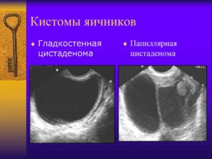 Что такое кистома яичников