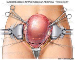 Лапаротомия миомы матки