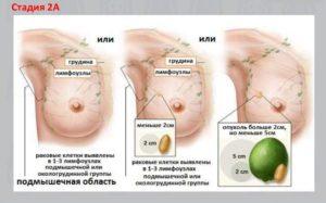 Как в домашних условиях определить рак молочной железы