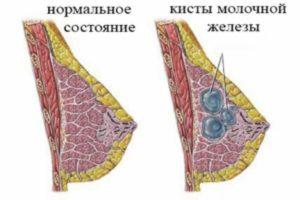 Воспаление кисты молочной железы лечение