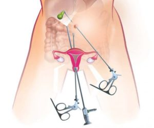 Биопсия кисты яичника