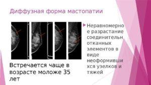 Диффузный фиброз молочной железы