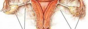 Спайки яичников симптомы