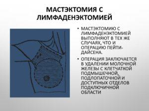 Резекция молочной железы радикальная с региональной лимфаденэктомией