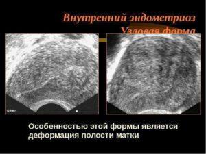 Эхопризнаки внутреннего эндометриоза