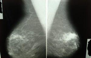 Очаговый аденоз молочной железы