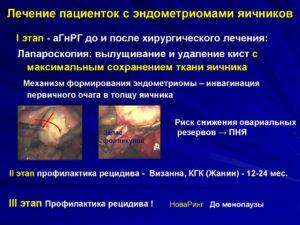 Снижение овариального резерва яичников лечение