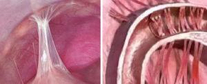 Что нельзя при эндометриозе