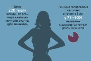 Рак яичников прогноз