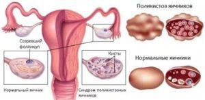 Синдром поликистозных яичников при планировании беременности