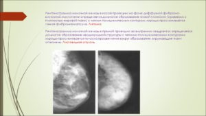 Фиброзно кистозная болезнь молочной железы что это