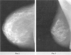 Инволюция молочной железы
