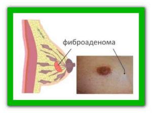 После удаления фиброаденомы молочной железы уплотнение