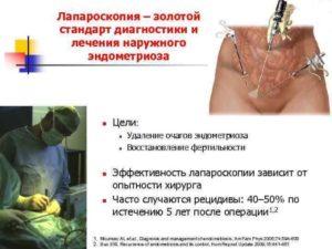 Лечение после лапароскопии эндометриоза