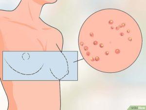 Средство от опрелости под молочными железами