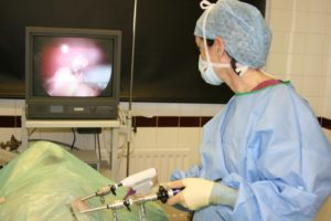 Операция лапароскопия яичников