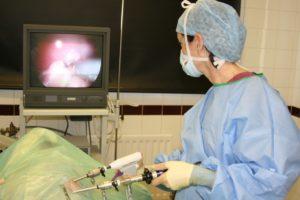 Как делают операцию по удалению кисты яичника