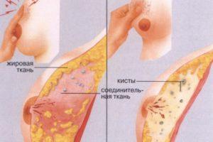 Как убрать уплотнение в молочной железе при лактации